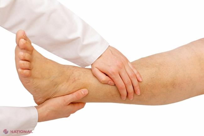 Articulațiile În Brațe Și Picioare Rănesc Tot Timpul
