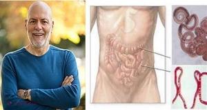 remedii pentru paraziți în intestinele umane)